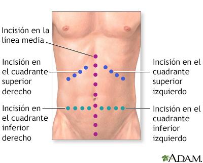 Exploración quirúrgica del abdomen o laparotomía exploratoria ...