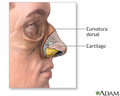 Cirugía plástica de la nariz (rinoplastia) - Serie   University of ...