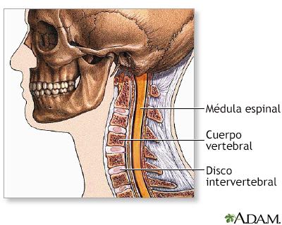 Cirugía de la columna cervical - Serie | University of Maryland ...