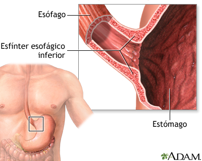 Acalasia - Serie | University of Maryland Medical Center