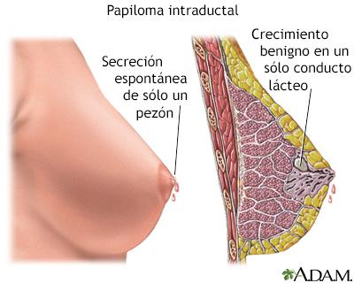 papiloma intraductal en las mamas)
