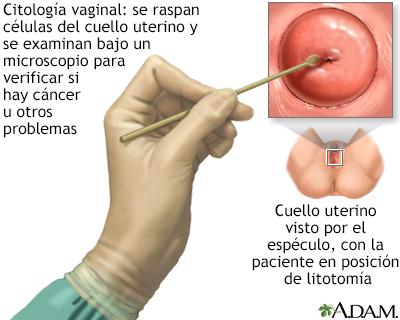 prueba papanicolaou anormal