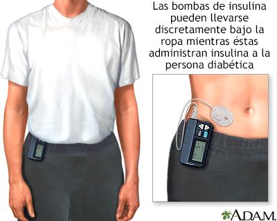 bomba de insulina para tratamiento de diabetes tipo 1