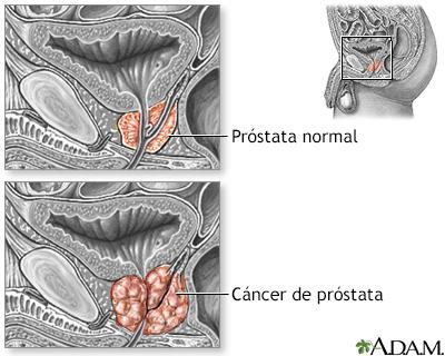 radiación para el cáncer de próstata después de una prostatectomía radical