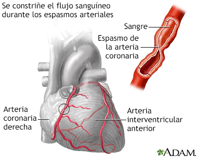 Coronaria imagen de arteria