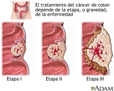 cancer rectal tratamiento cancer endometrial acog