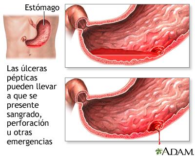 hemorragia digestiva por ulcera peptica