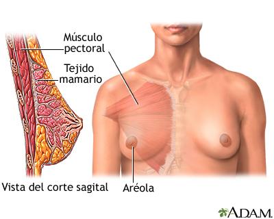 Aumento del tamaño de los senos - serie | University of Maryland ...