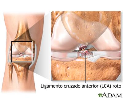 Ligamento cruzado anterior reparación - Serie | University of ...