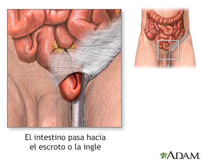 Reparación quirúrgica de una hernia inguinal - Serie | University of ...