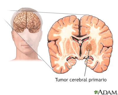 Benigno tratamiento cerebral tumor