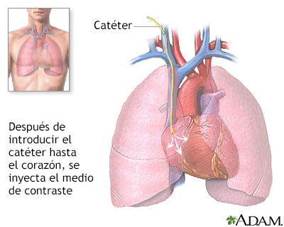 como es un cateterismo linear unit el corazon