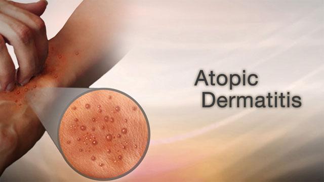 Atopic dermatitis Information | Mount Sinai - New York