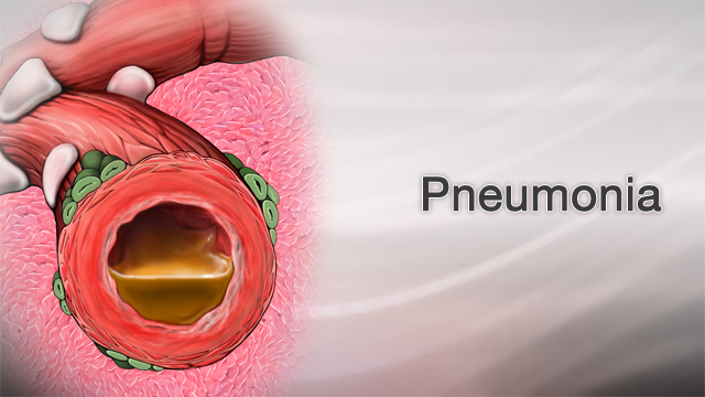 Pneumonia - Physiopedia
