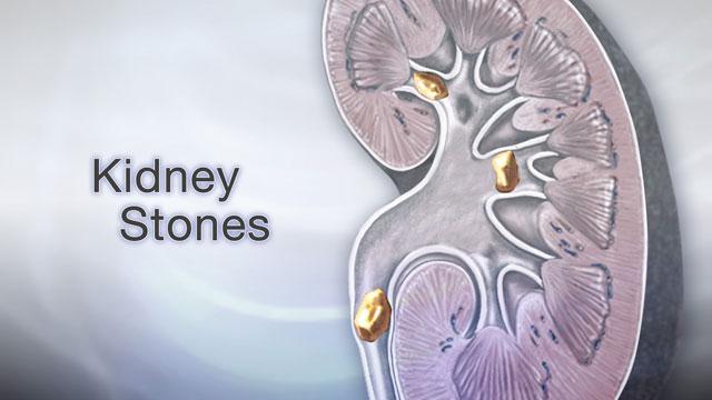 Kidney Stones Information Mount Sinai New York