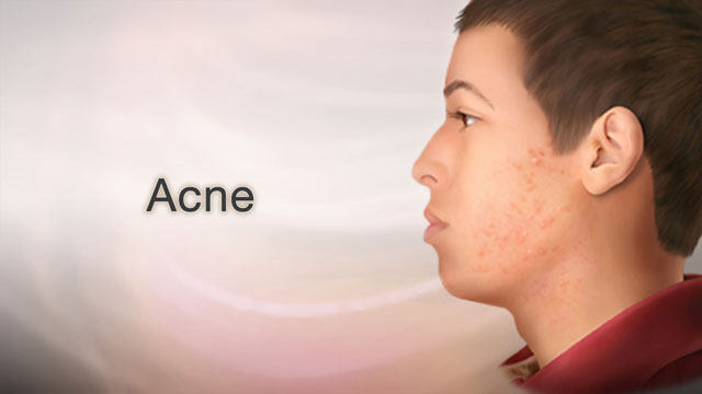 Acne Information   Mount Sinai - New York