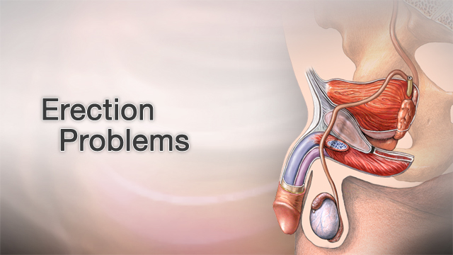 Get how a erection to healthy How to