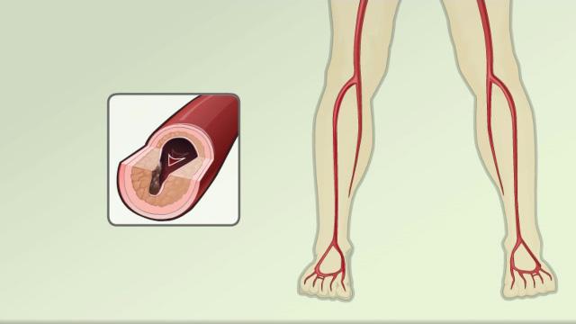 Peripheral artery bypass - leg - discharge Information | Mount Sinai ...