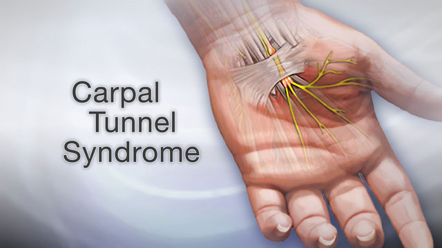 Carpal tunnel syndrome Information | Mount Sinai - New York