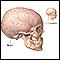 Craniotomy - series