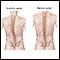 Image for Scoliosis
