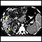 Image for Hepatocellular cancer, CT scan