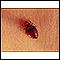 Image for Bedbug - close-up