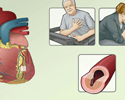 Angina pectoris treatment