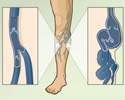 Varicose veins overview