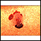 Cáncer de piel, melanoma maligno