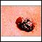 Cáncer de piel o melanoma multicolor en relieve