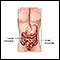 Image for Intestinal obstruction repair - series