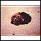 Cáncer de piel o melanoma: lesión oscura saliente