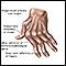 Image for Rheumatoid arthritis