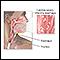 Image for Candidal esophagitis