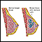 Image for Fibrocystic breast disease