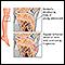 Image for Leg pain (Osgood-Schlatter)