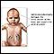 Adrenoleucodistrofia neonatal