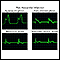 Post myocardial infarction ECG wave tracings