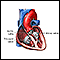 Image for Heart valve surgery - Series
