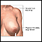 Image for Breast reduction (mammoplasty) - series