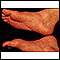 Image for Reactive arthritis - view of the feet