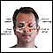 Image for Chronic sinusitis