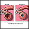 Image for Bronchitis and Normal Condition in Tertiary Bronchus