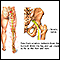 Image for Sciatic nerve