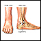 Image for Ankle sprain - series