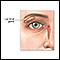 Glándula lacrimal