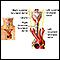 Nervios de la laringe