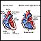 Doble salida ventricular derecha