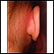 Image for Mastoiditis - redness and swelling behind ear